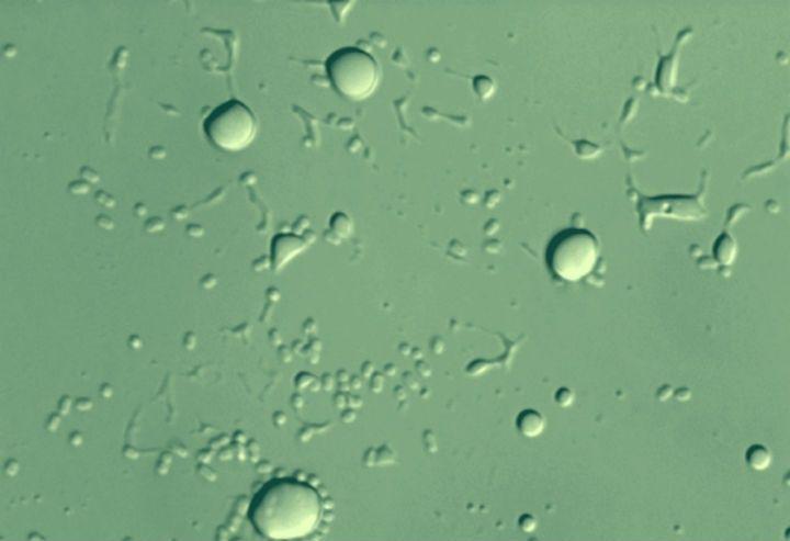 wpid-17198_batterio.jpg